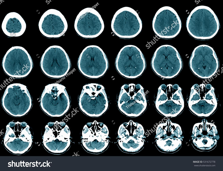 CT Brain Cross Section Brain Imaging Stock Photo (Edit Now ...