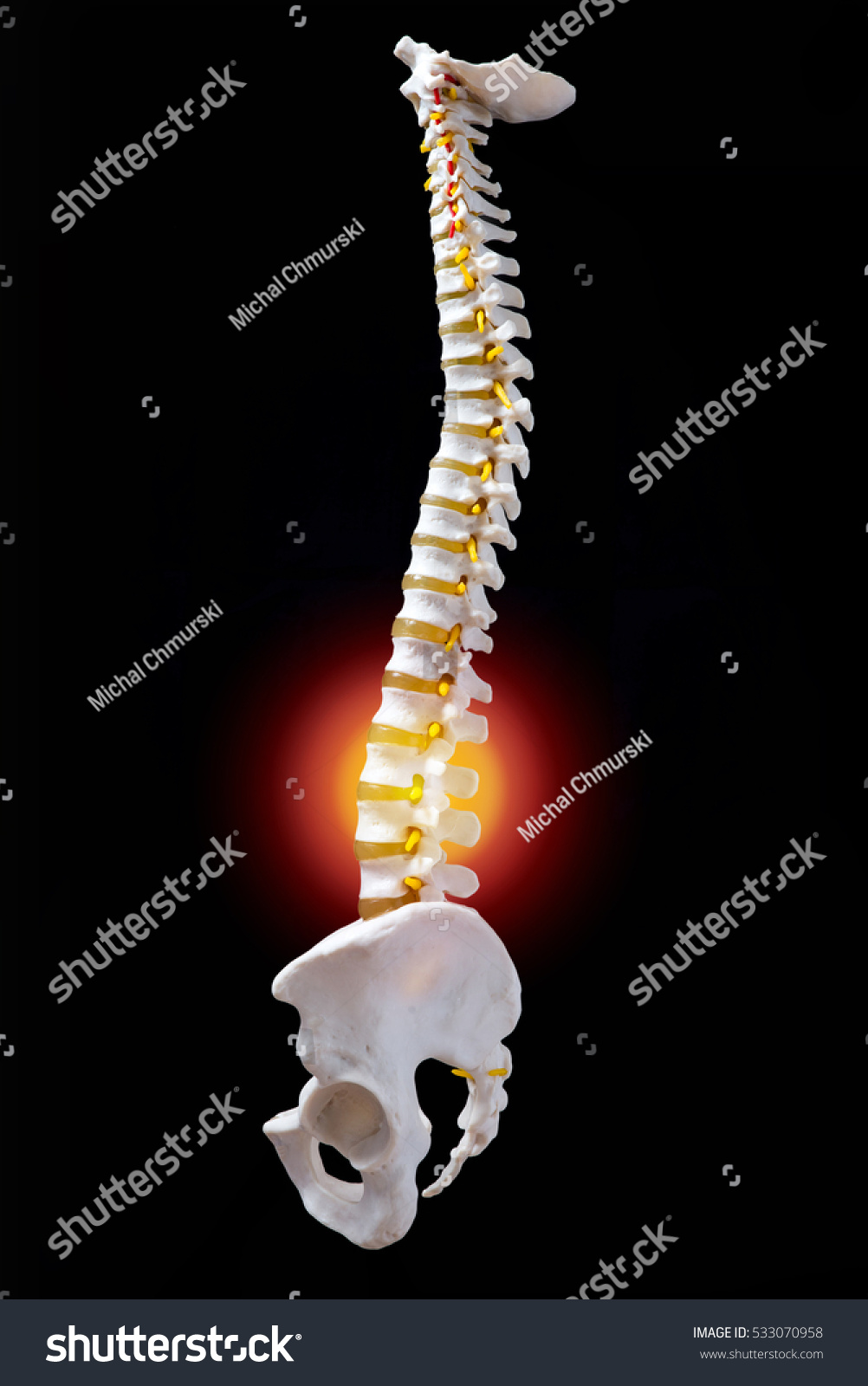 Back Pain Loin Showed On Plastic Stock Photo Edit Now 533070958