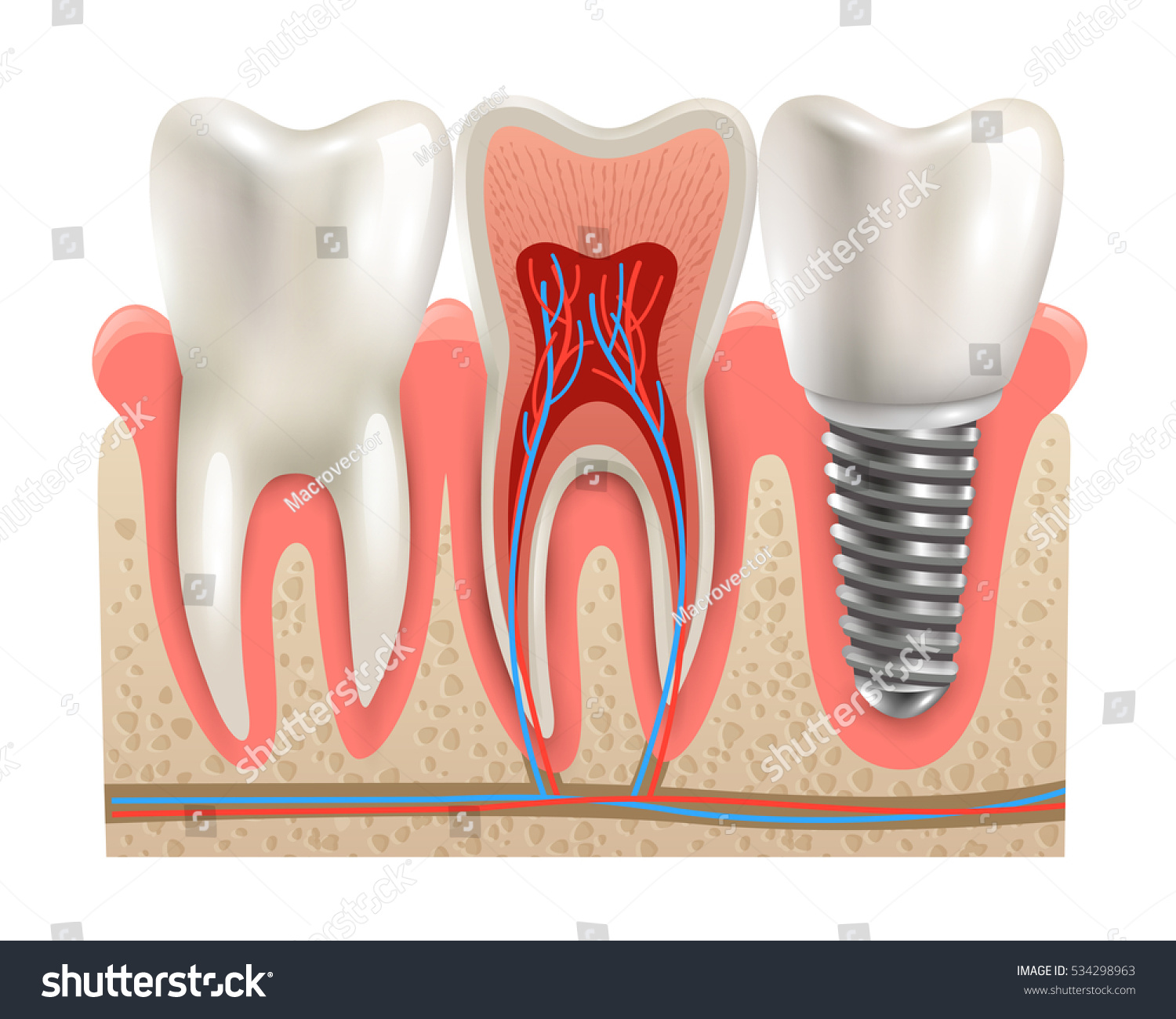 Dental Implant Real Tooth Anatomy Closeup Stock Vector 534298963