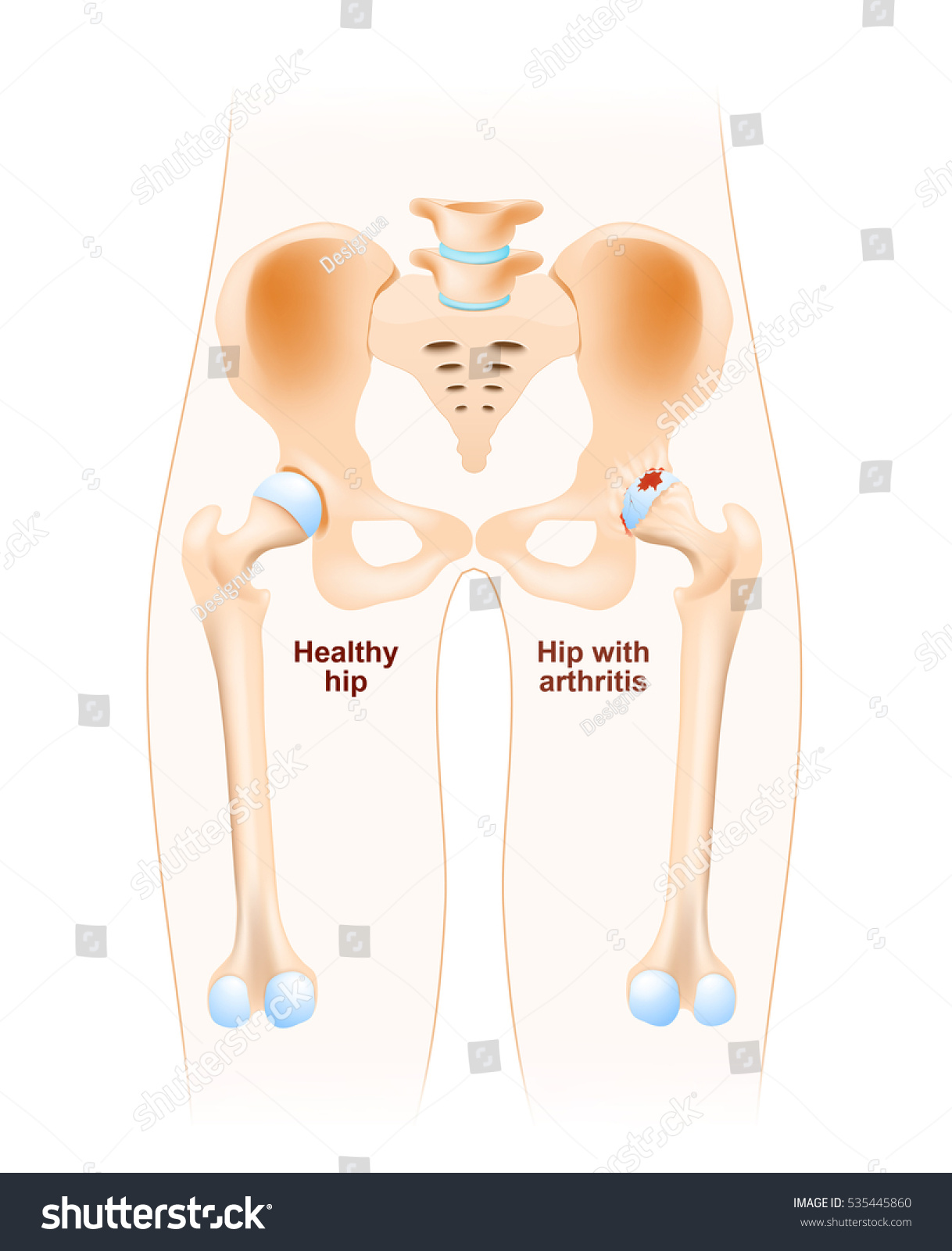 how to build cartilage in hip