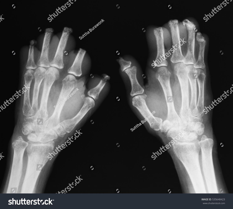 Xray Image Hands After Bilateral Amputation Stockfoto (Lizenzfrei ...