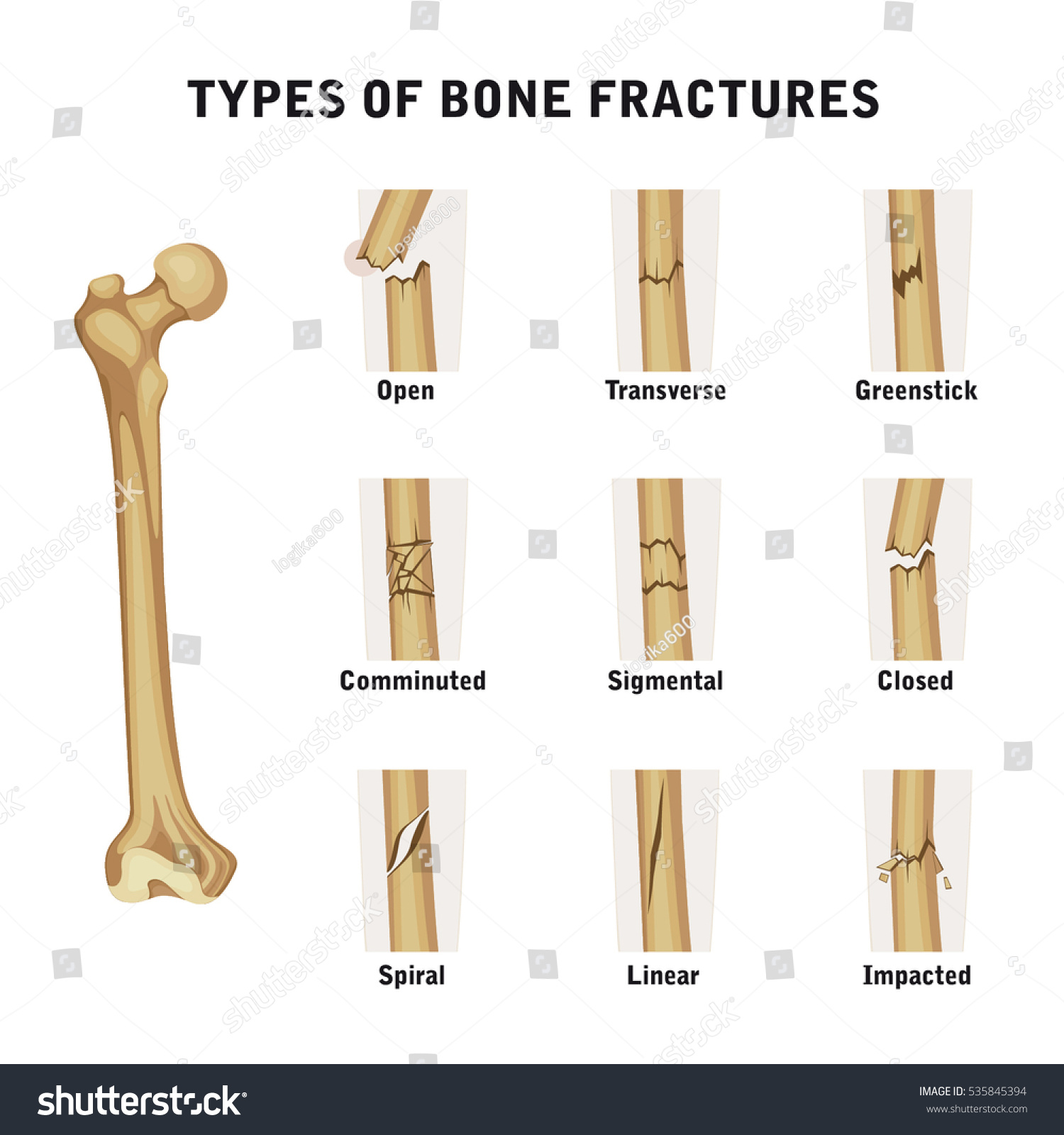 Types Bone Fractures Stock Vector Royalty Free 535845394