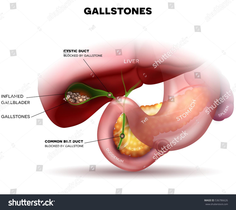 Stones Gallbladder Anatomy Other Surrounding Organs Stock ...