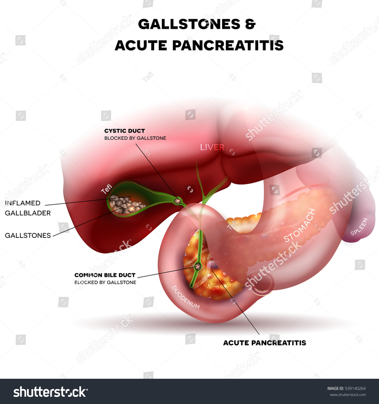 Gallstones Gallbladder Acute Pancreatitis Anatomy Bright Stock ...