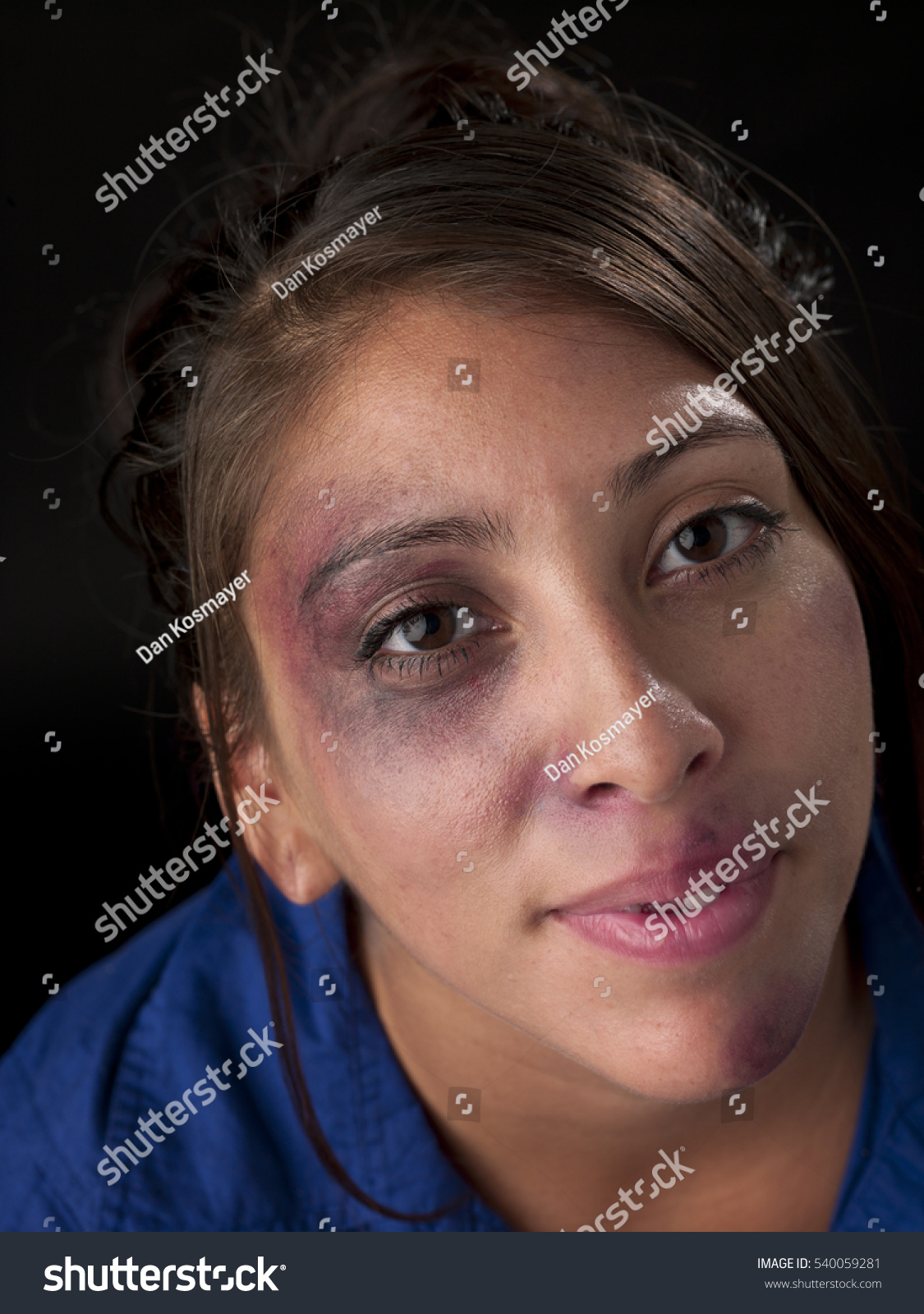woman body facial injuries which can stock photo 540059281