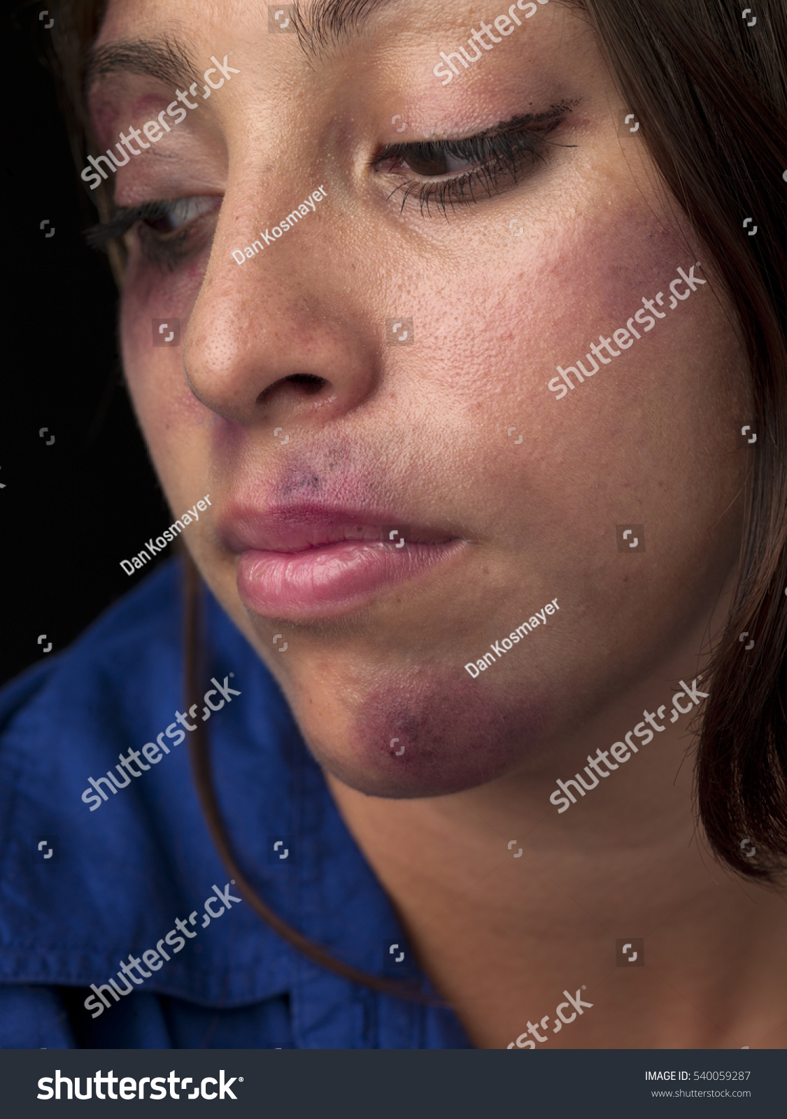 woman body facial injuries which can stock photo 540059287