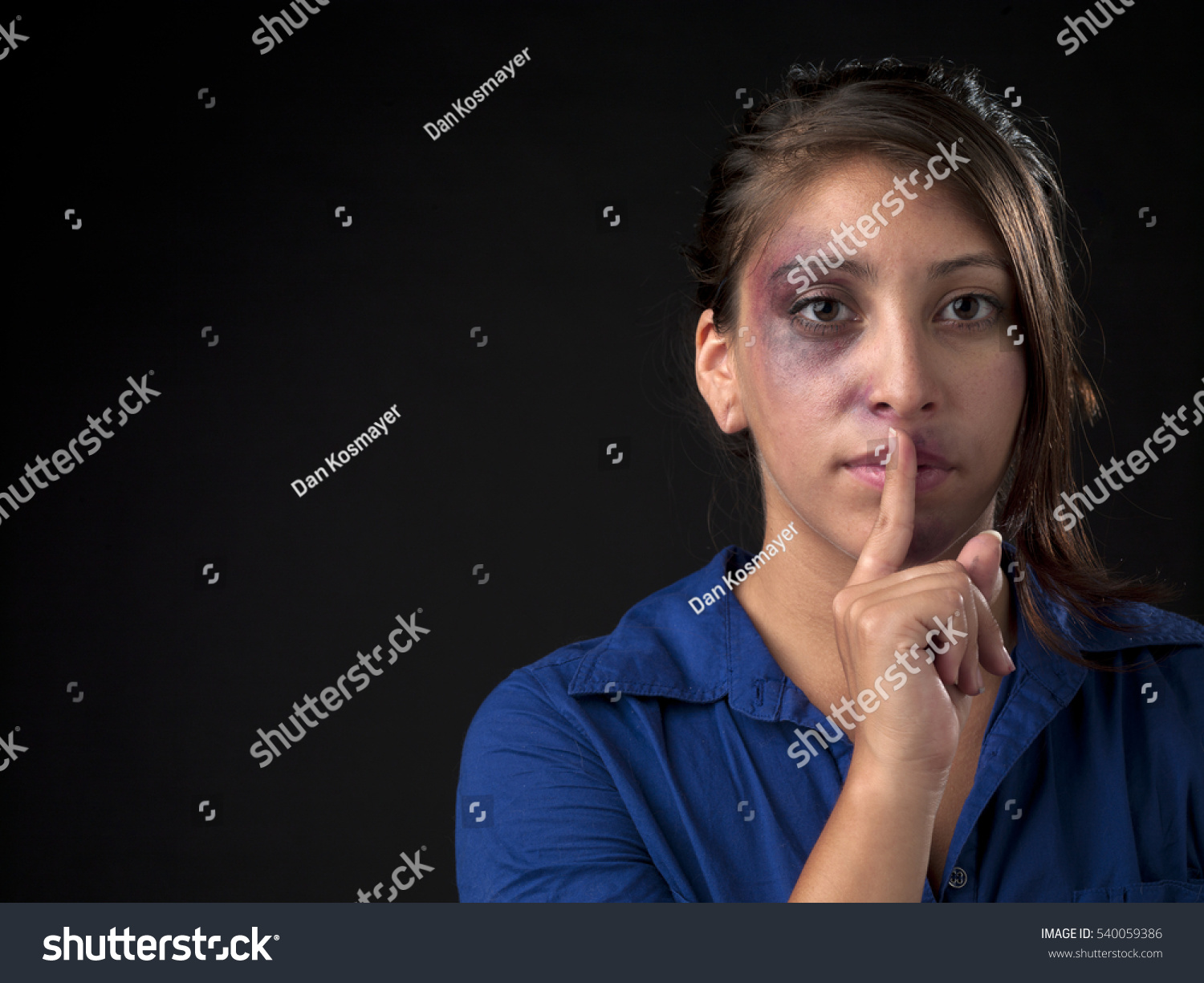 woman body facial injuries which can stock photo 540059386