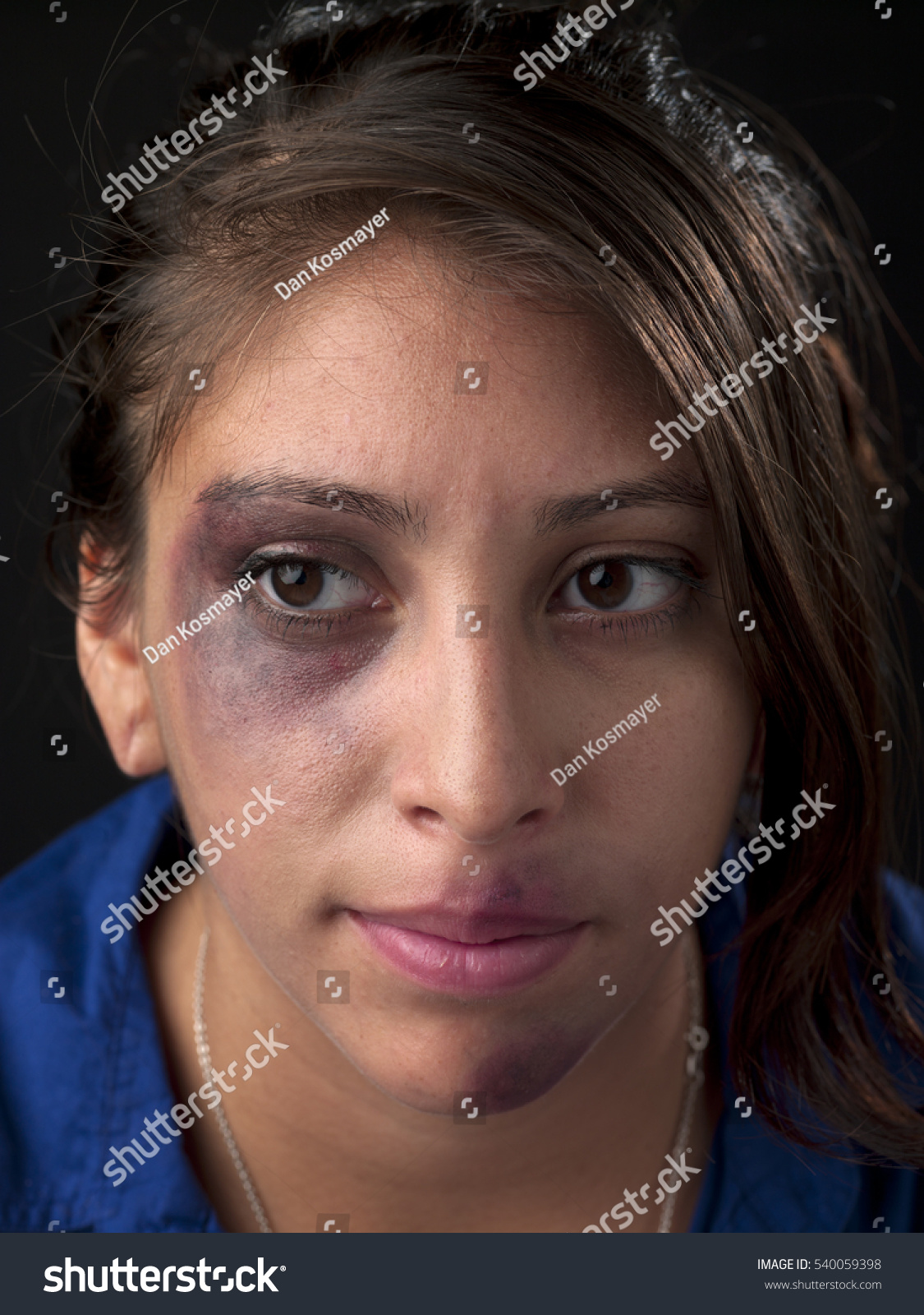 woman body facial injuries which can stock photo 540059398