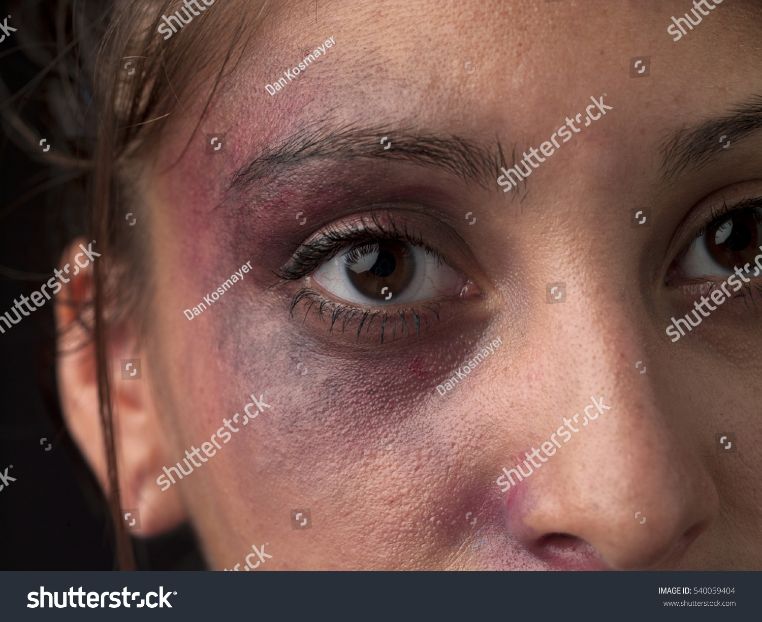 woman body facial injuries which can stock photo 540059404