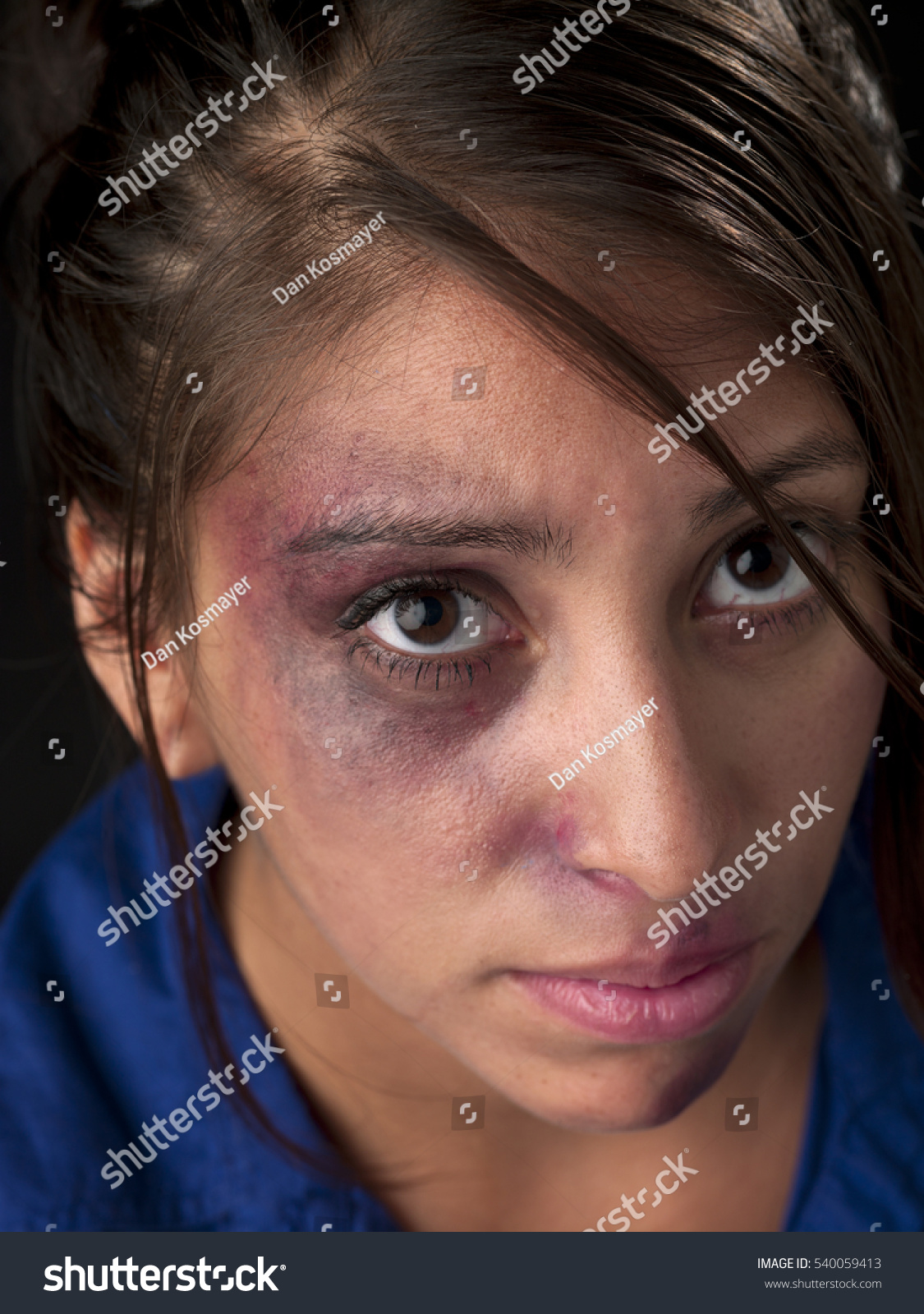 woman body facial injuries which can stock photo 540059413