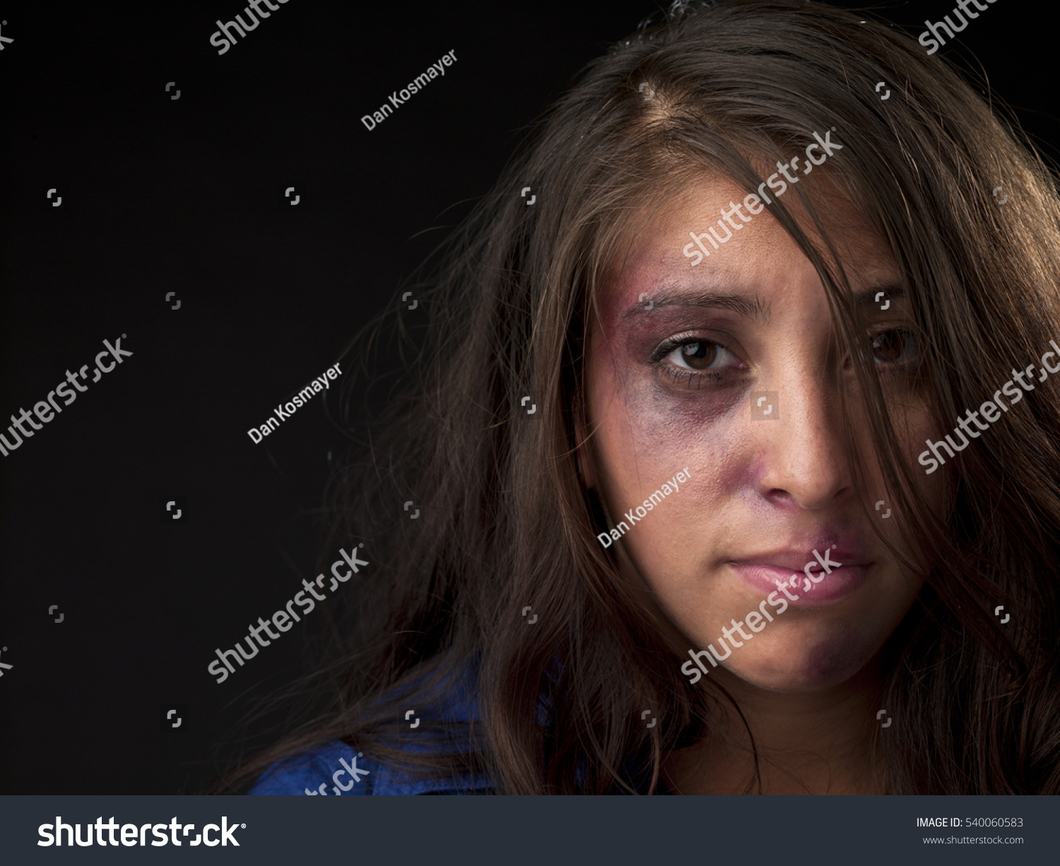 woman body facial injuries which can stock photo (royalty free