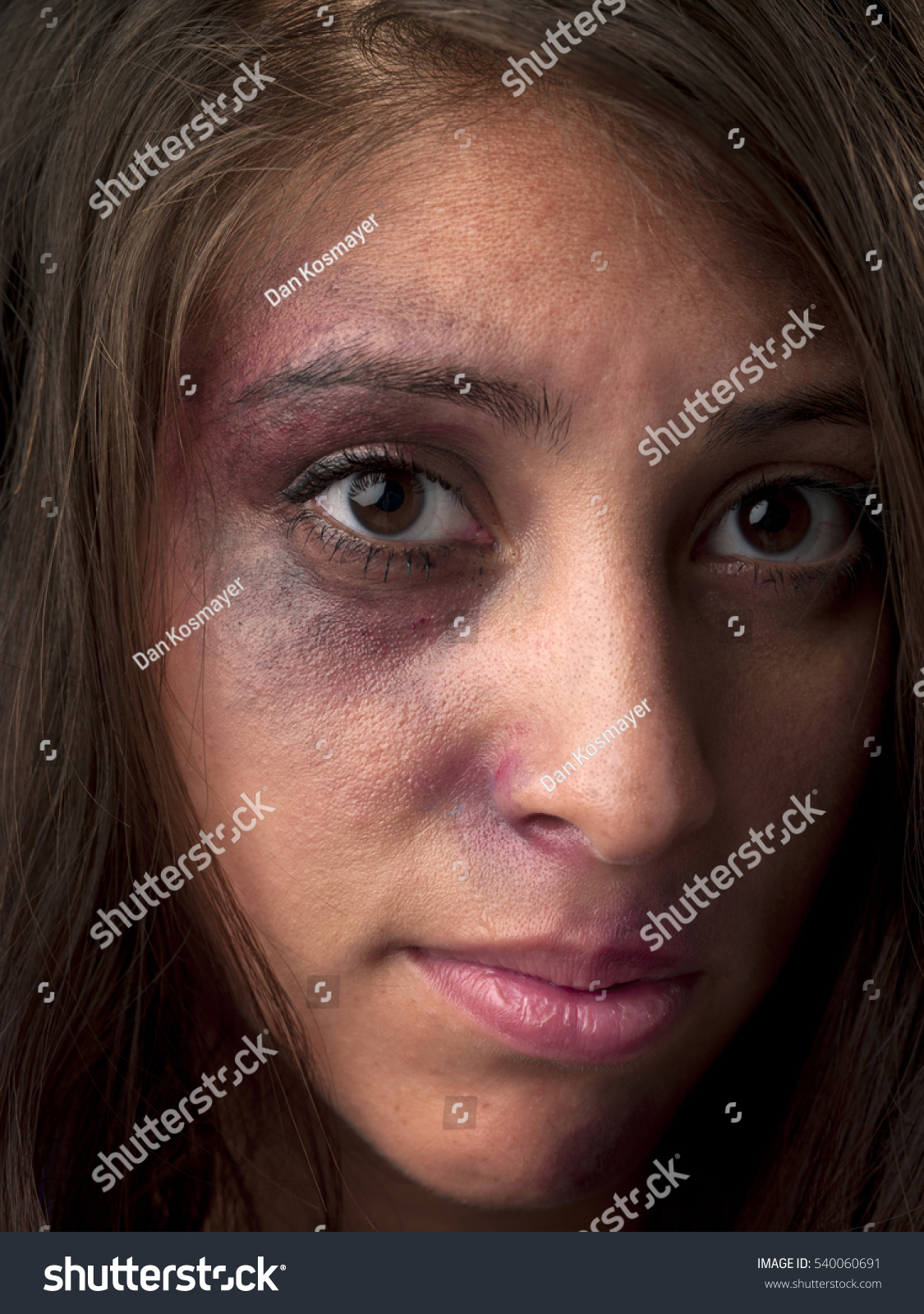 woman body facial injuries which can stock photo 540060691