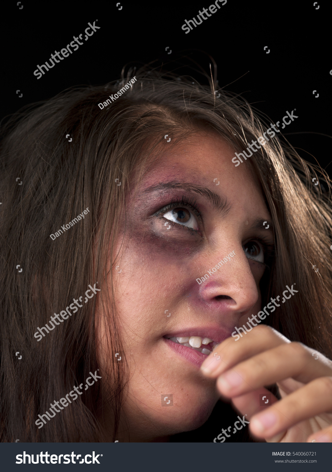 woman body facial injuries which can stock photo 540060721