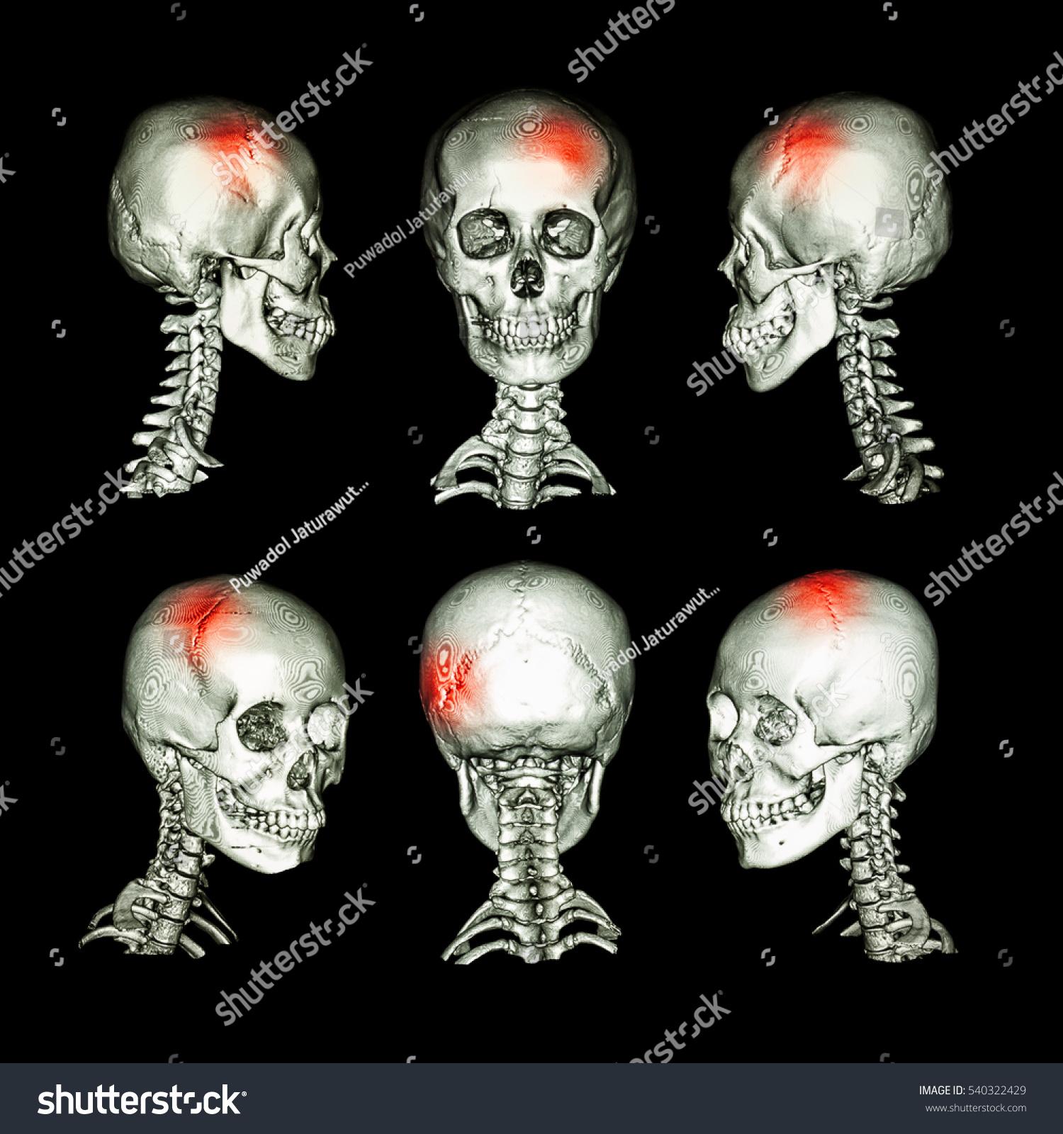 CT Scan 3 D Image Head Cervical Stock Illustration 540322429 ...