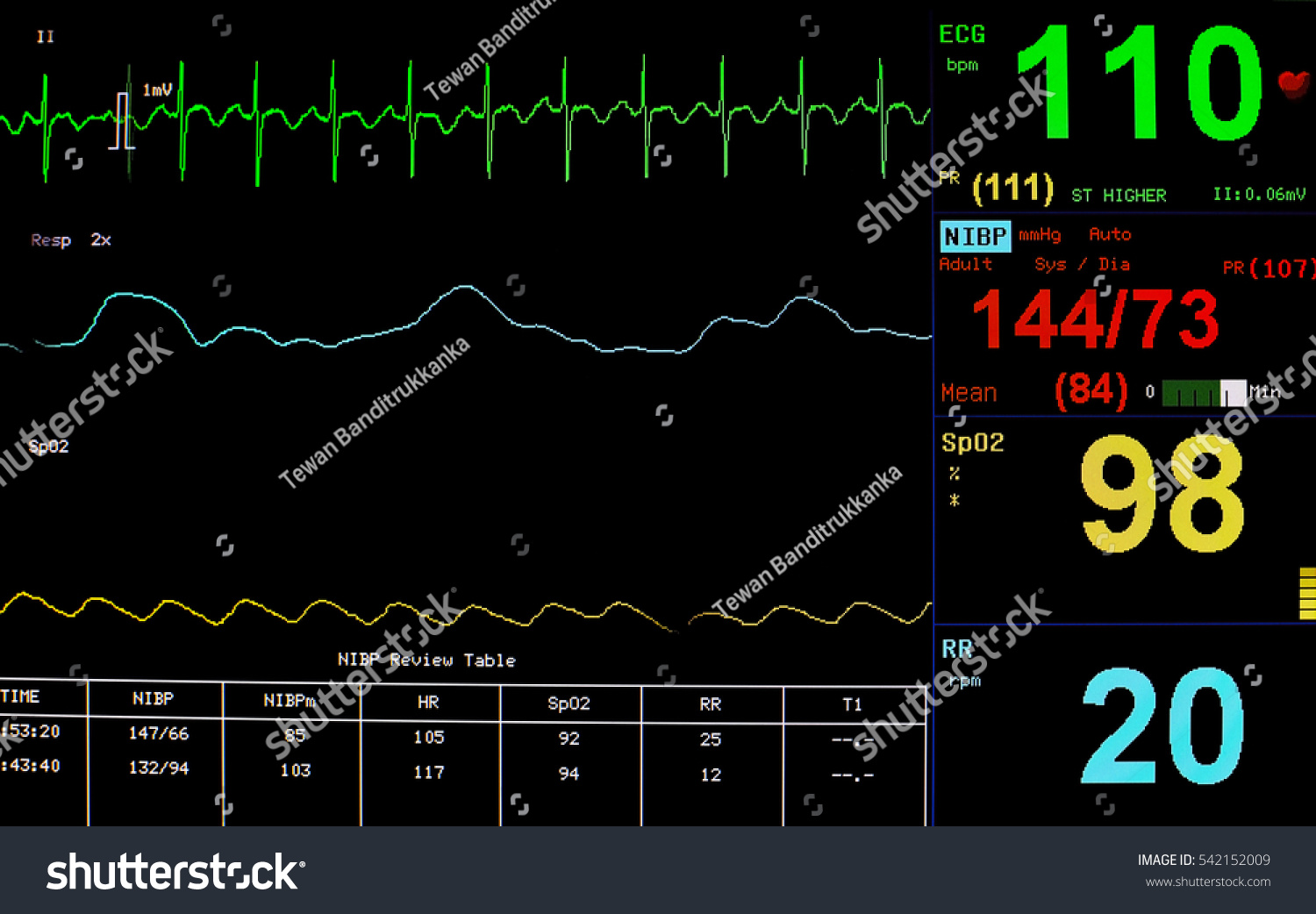 monitoring patients' signs wirelessly Wireless heart monitor fine-tunes cardiac-failure of monitoring the symptoms and signs of heart see if this wireless monitoring would also be.
