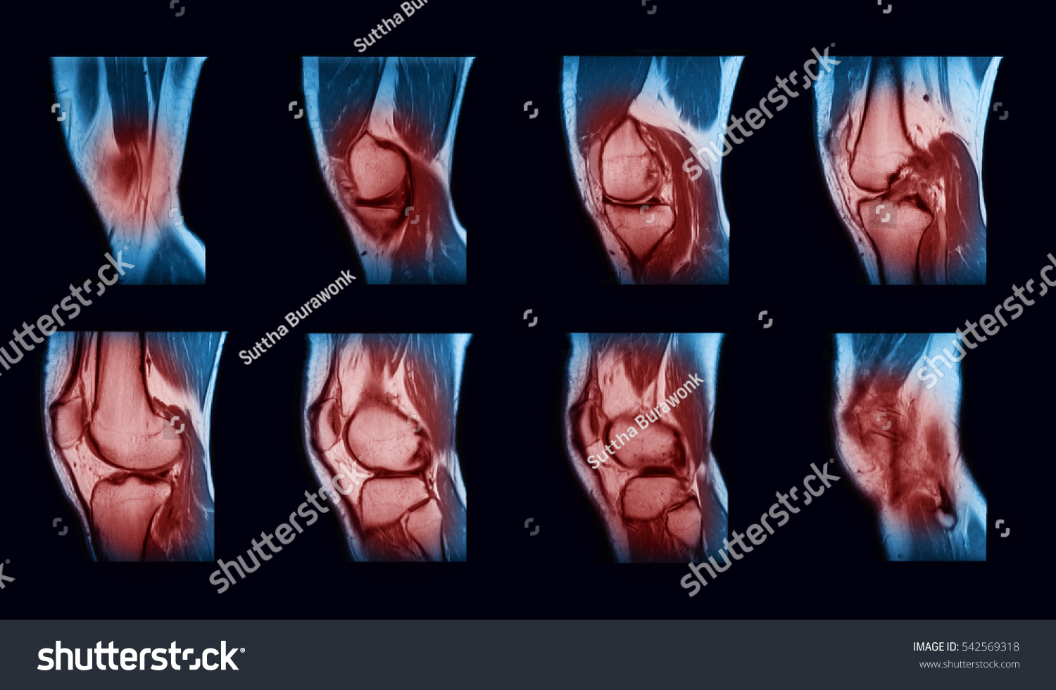 Magnetic Resonance Imaging MRI Right Knee Stock Photo (Royalty Free ...