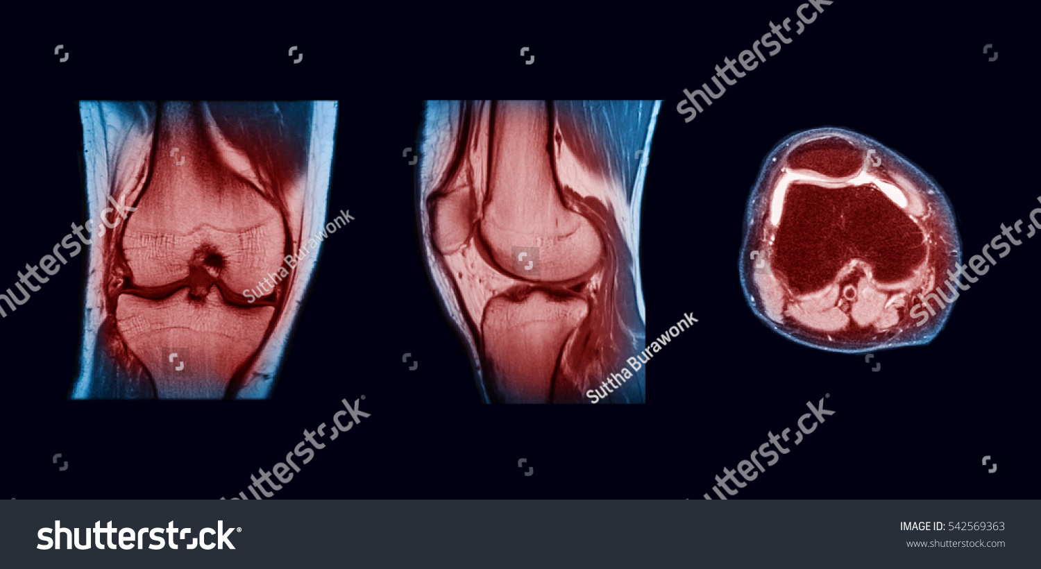Magnetic Resonance Imaging MRI Right Knee Stock Photo (Edit Now ...