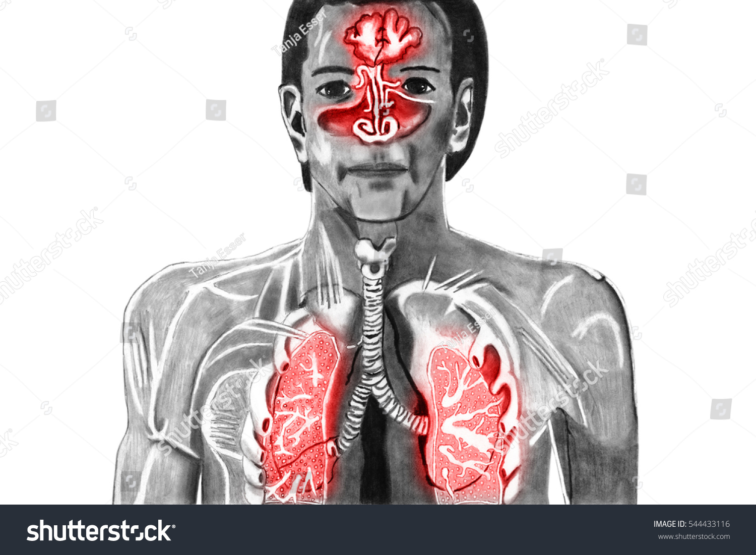 Cold Upper Respiratory Tract Cut Out Stock Illustration 544433116 ...