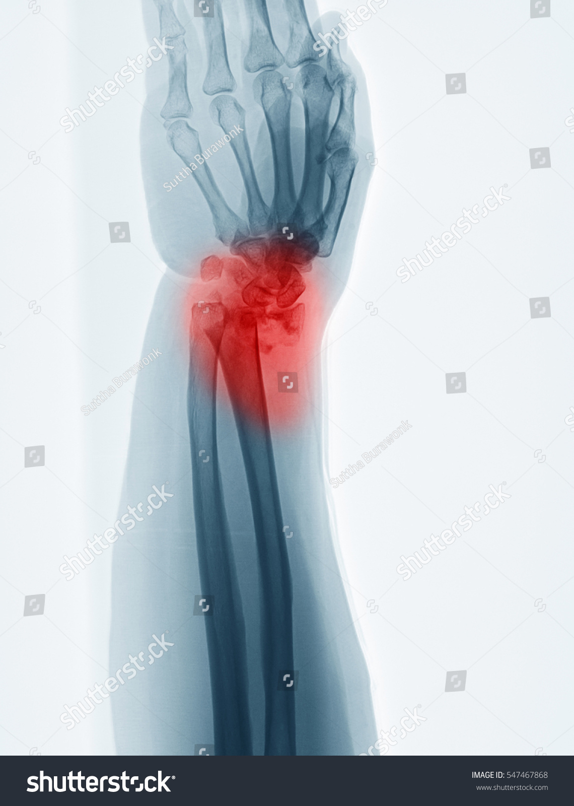 Computed Radiography CR Image Distal Forearm Stock Photo (100% Legal ...