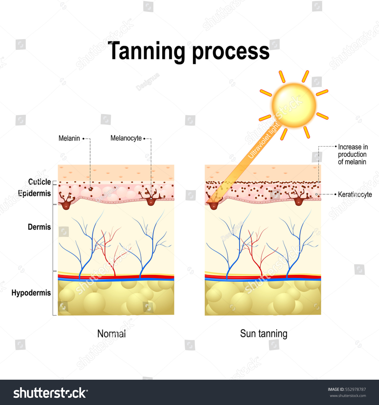 When Ultraviolet Light Waves Touch Melanocytes They Begin To Increase The Production