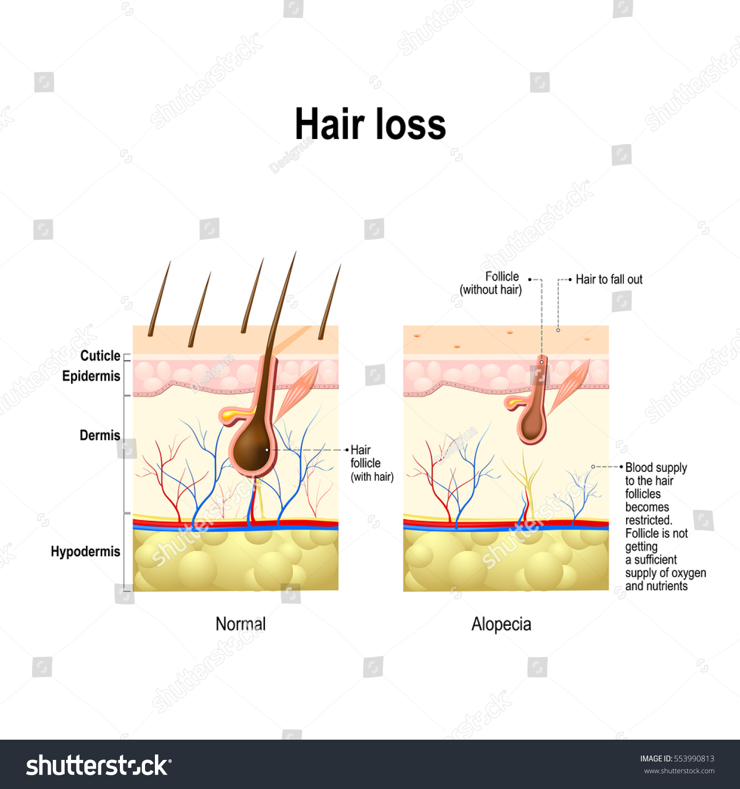 hair loss normal hair alopecia areata stock vector