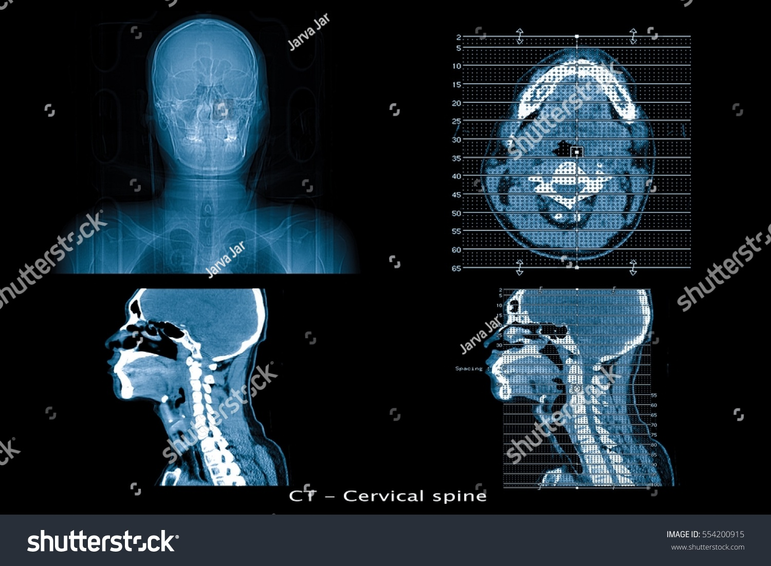 CT Scan Image Show Cervical Spine Stock Photo (100% Legal Protection ...