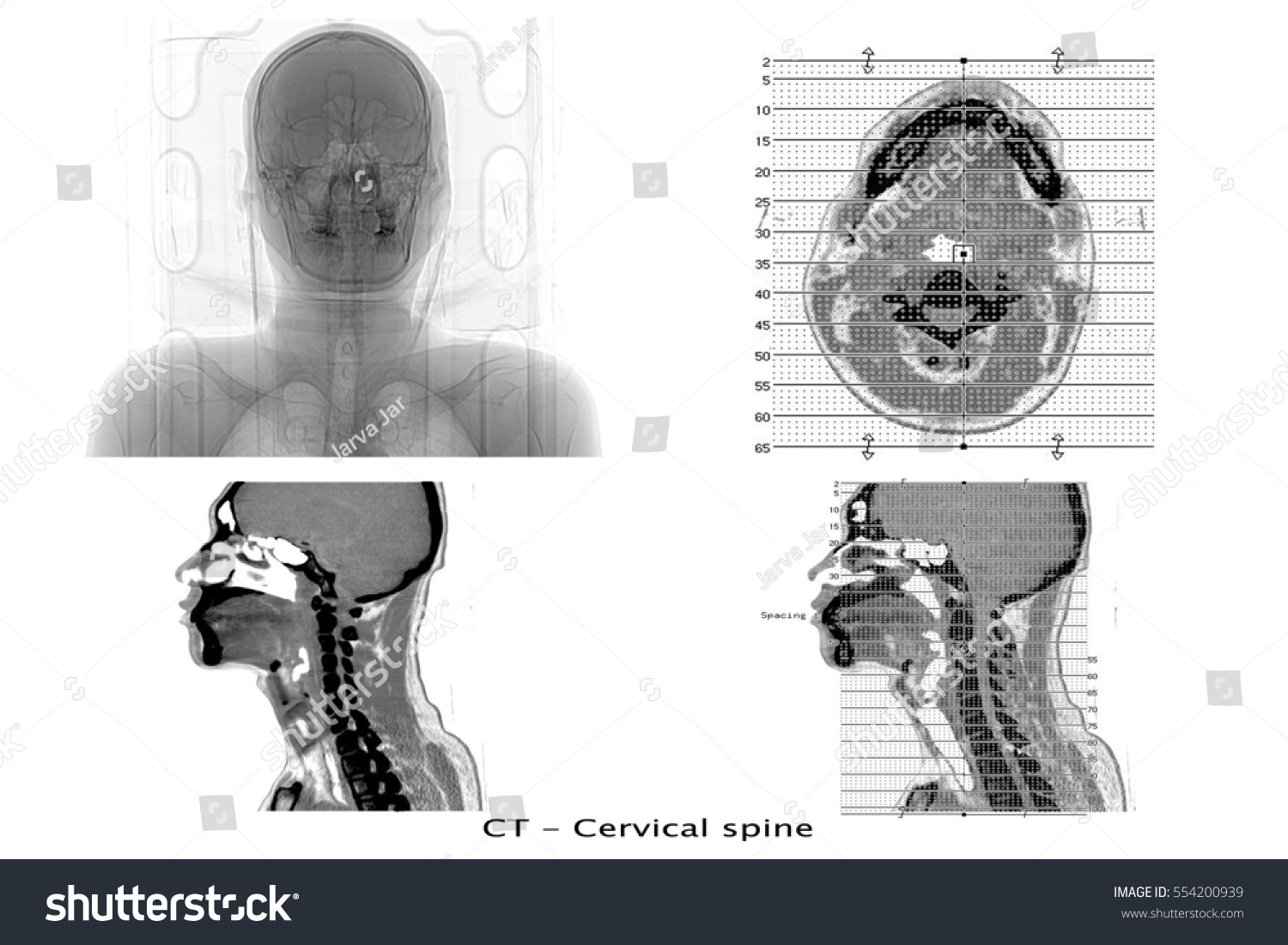 CT Scan Image Show Cervical Spine Stock Photo (Download Now ...