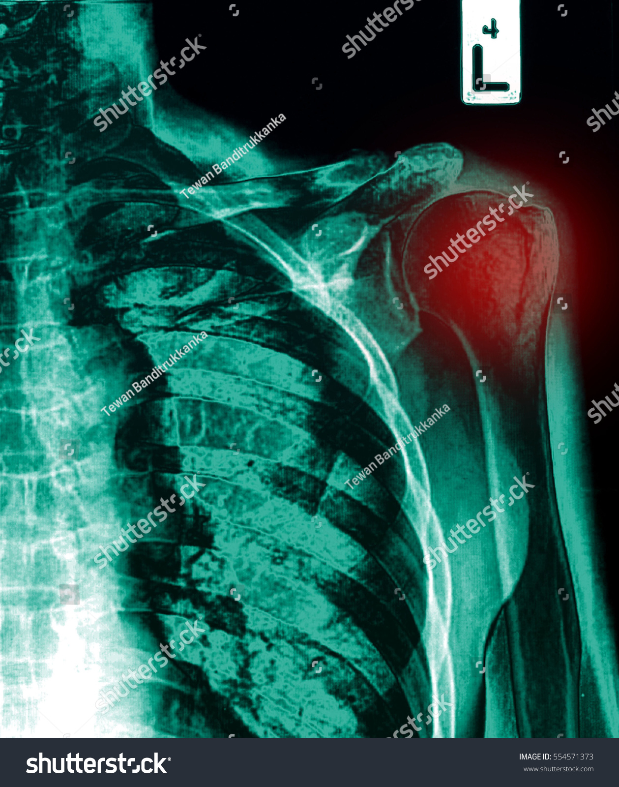 Shoulder Xray Image Showing Proximal Humeral Stock Photo (Edit Now ...