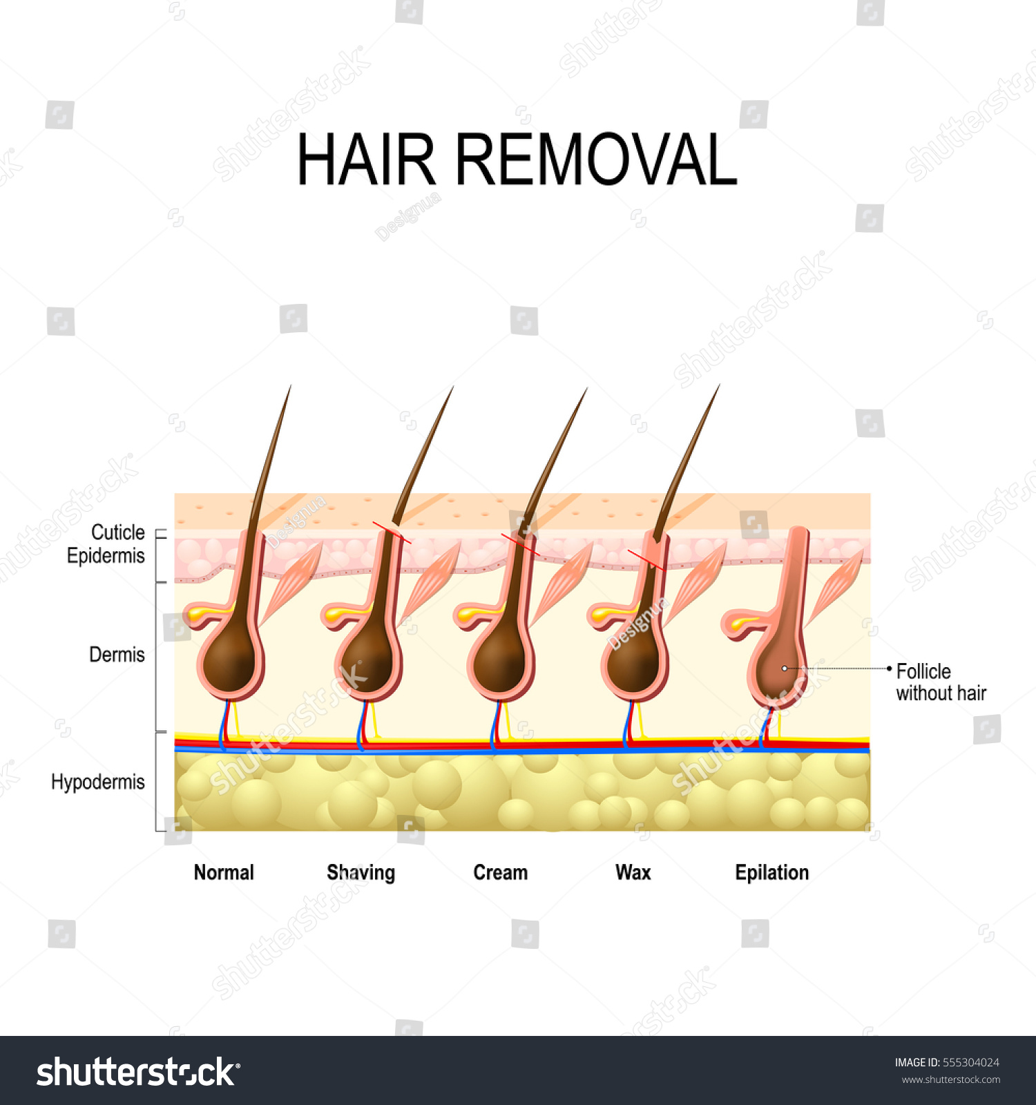 Pubic Hair Stock Photos Images Pictures Shutterstock Hair