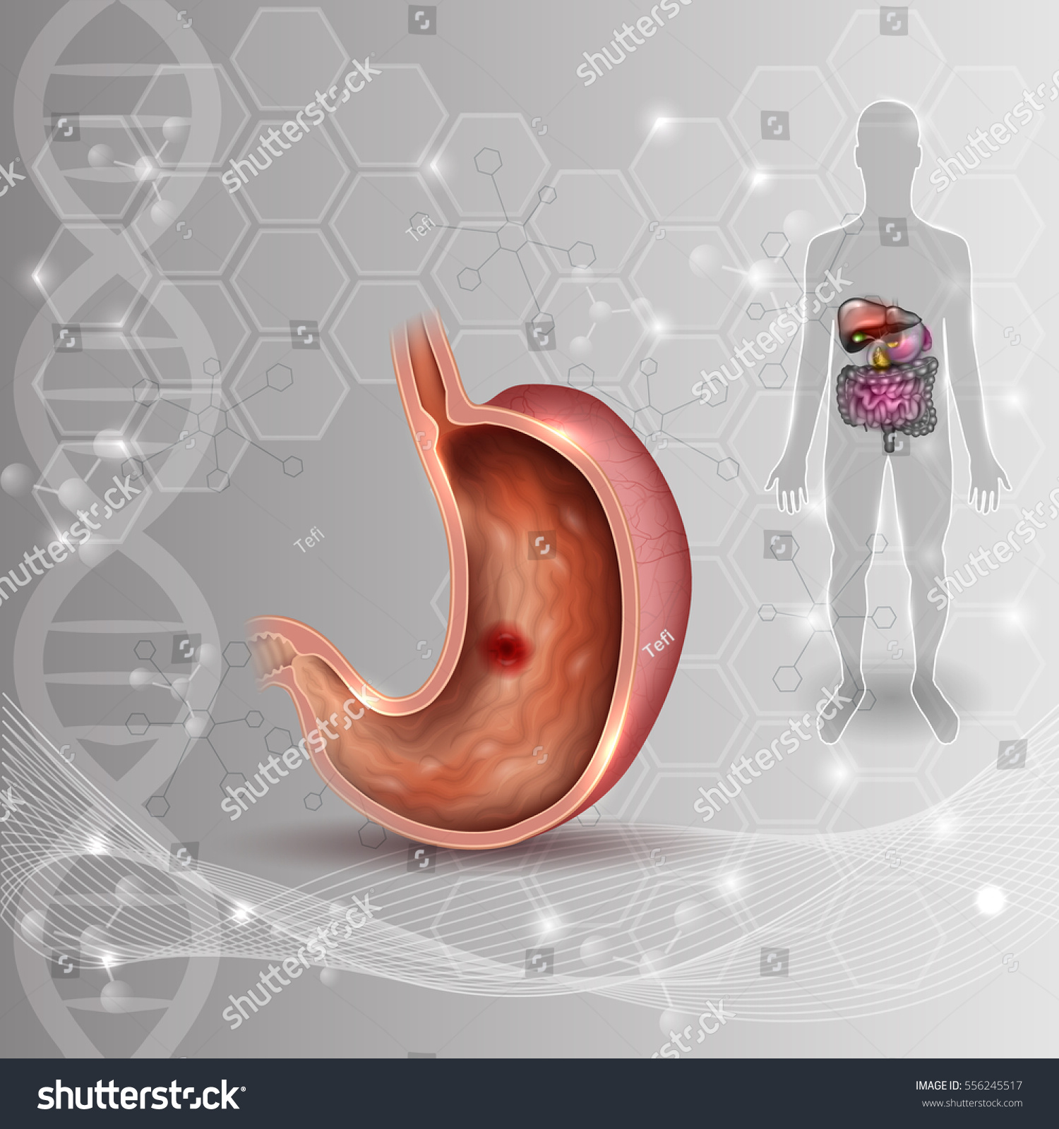 Stomach Ulcer Internal Organs Anatomy Colorful Stock Vector ...
