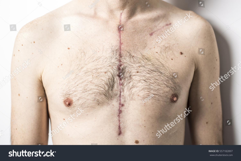 how to do open heart surgery