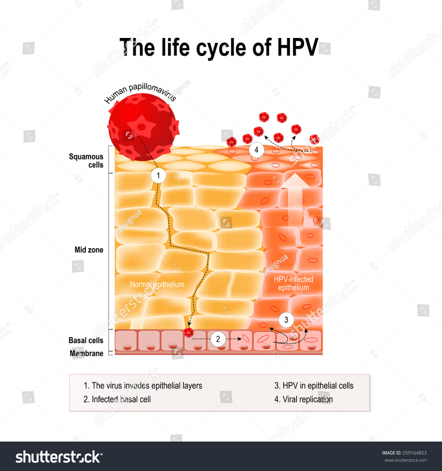 Life Cycle Hpv Human Epithelium Hpv Stock Vector 559164853 ...