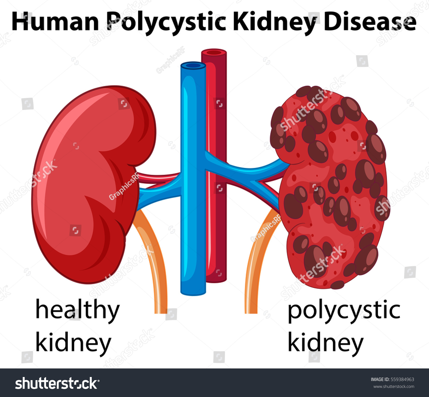 Diagram showing human polycystic kidney disease stock vector diagram showing human polycystic kidney disease illustration ccuart Choice Image