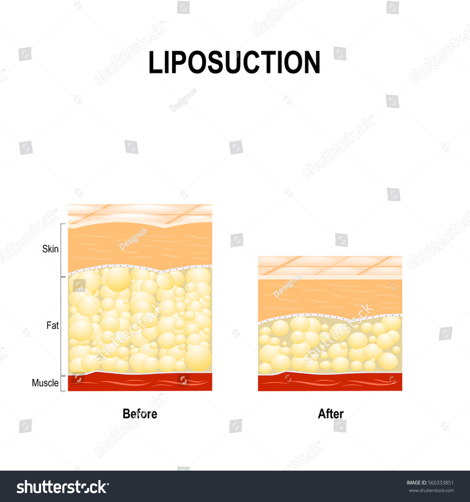 Liposuction Type Cosmetic Surgery Remove Fat Stock Vector HD ...