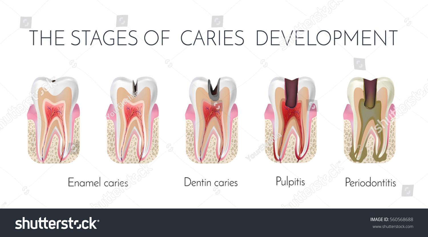 Tooth Decay Stages Caries Development Enamel Stock ...