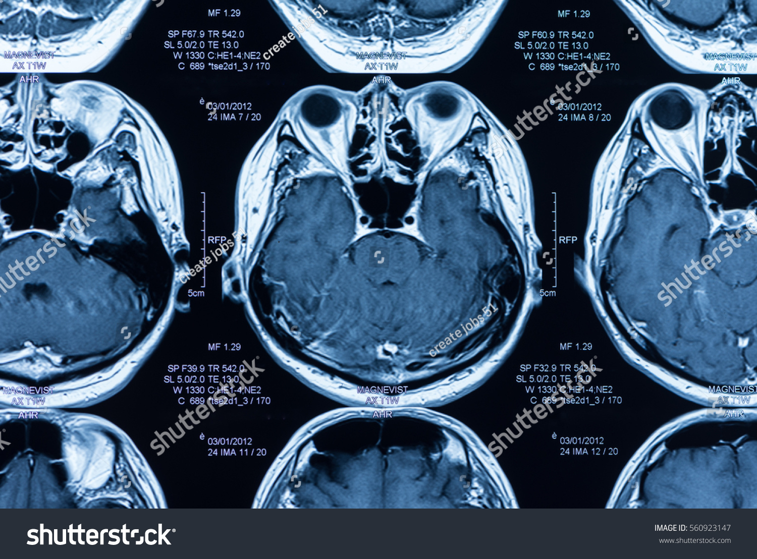 Magnetic Resonance Image Mri S...