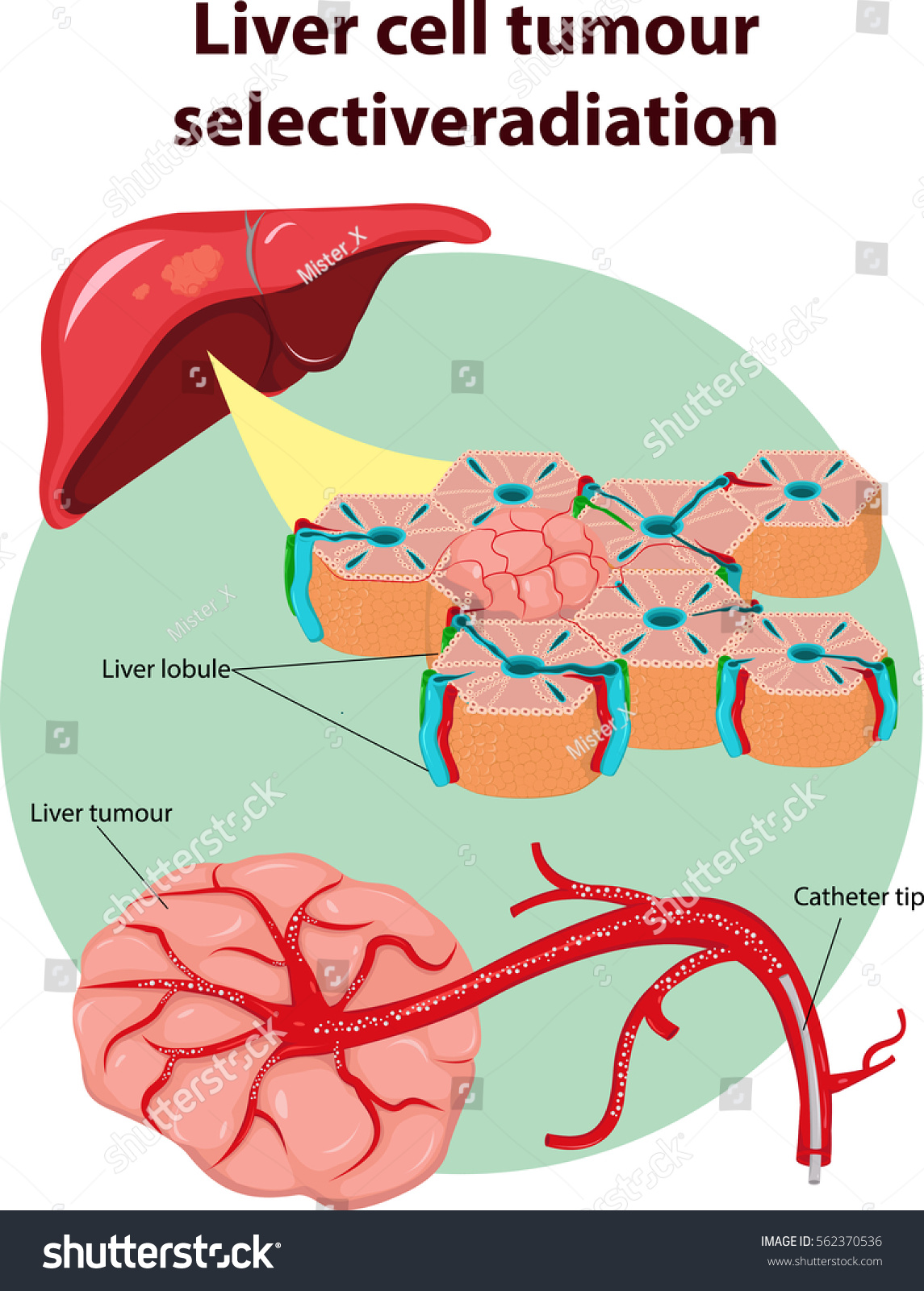 Vector Illustration Liver Tumor Selective Anatomy Stock Vector