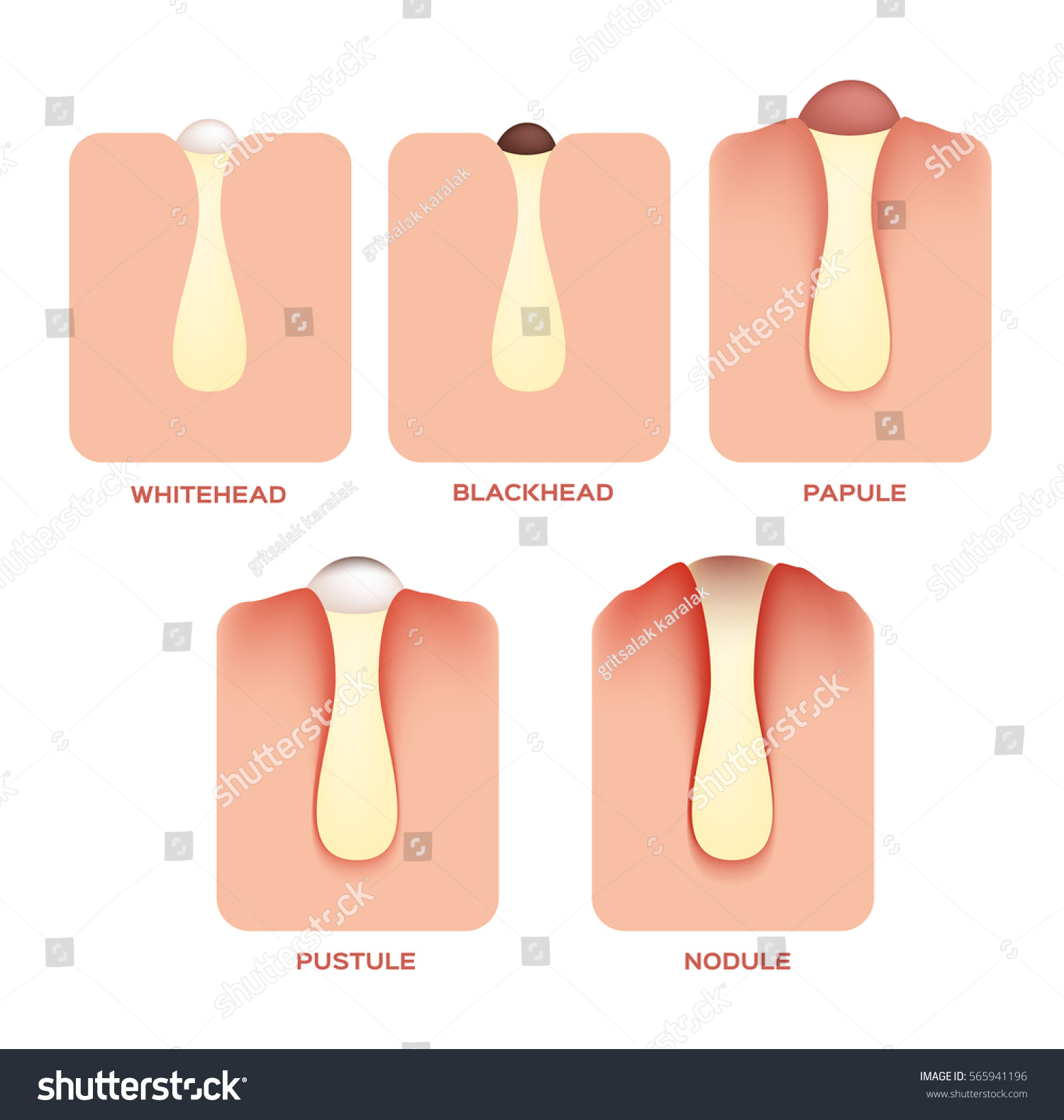 Types Acne Pimples Stages Development Vector Stock Vector (Royalty ...
