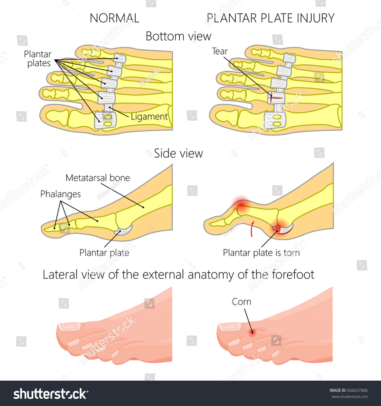 Diagram of plantar plate auto wiring diagram today vector illustration diagram hammer toe plantar stock vector rh shutterstock com plantar plate tear plantar plate tear cpt code publicscrutiny Image collections