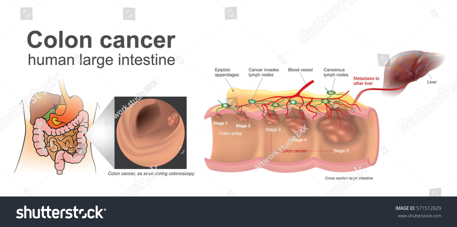 Cancer Invades Blood Lymph Systems Malignant Stock Vector (Royalty ...