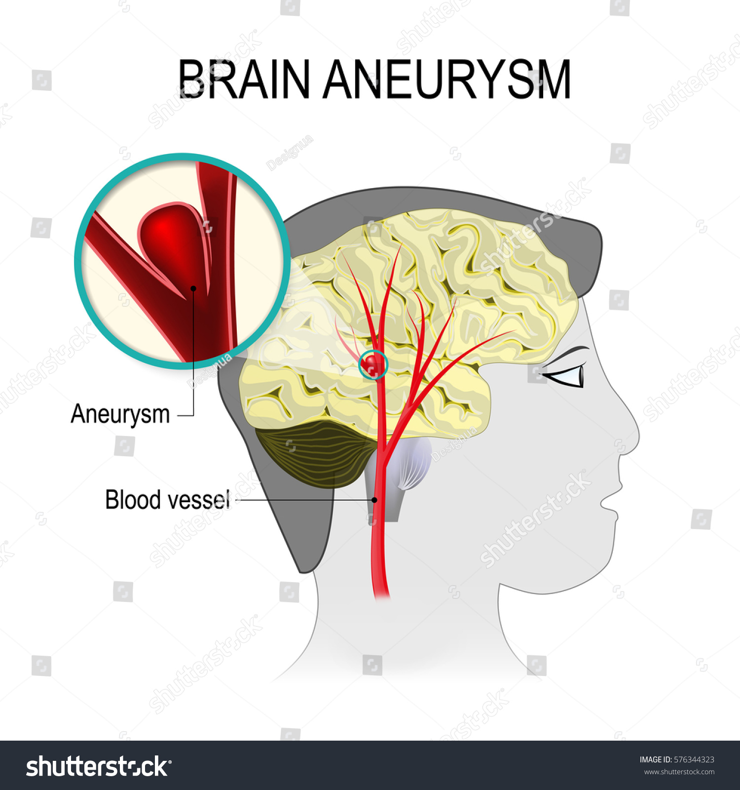 Blood Vessels Brain Aneurysm On Background Stock Vector (Royalty ...