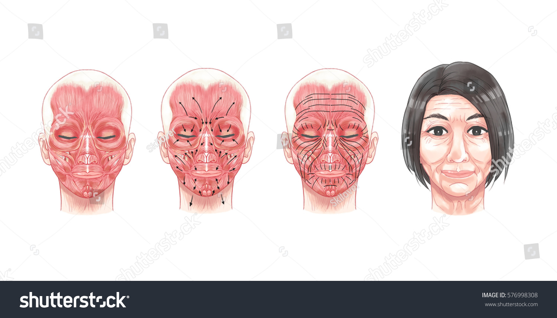 Face Facial Anatomy Botulinum Toxin Injection Stock Illustration ...
