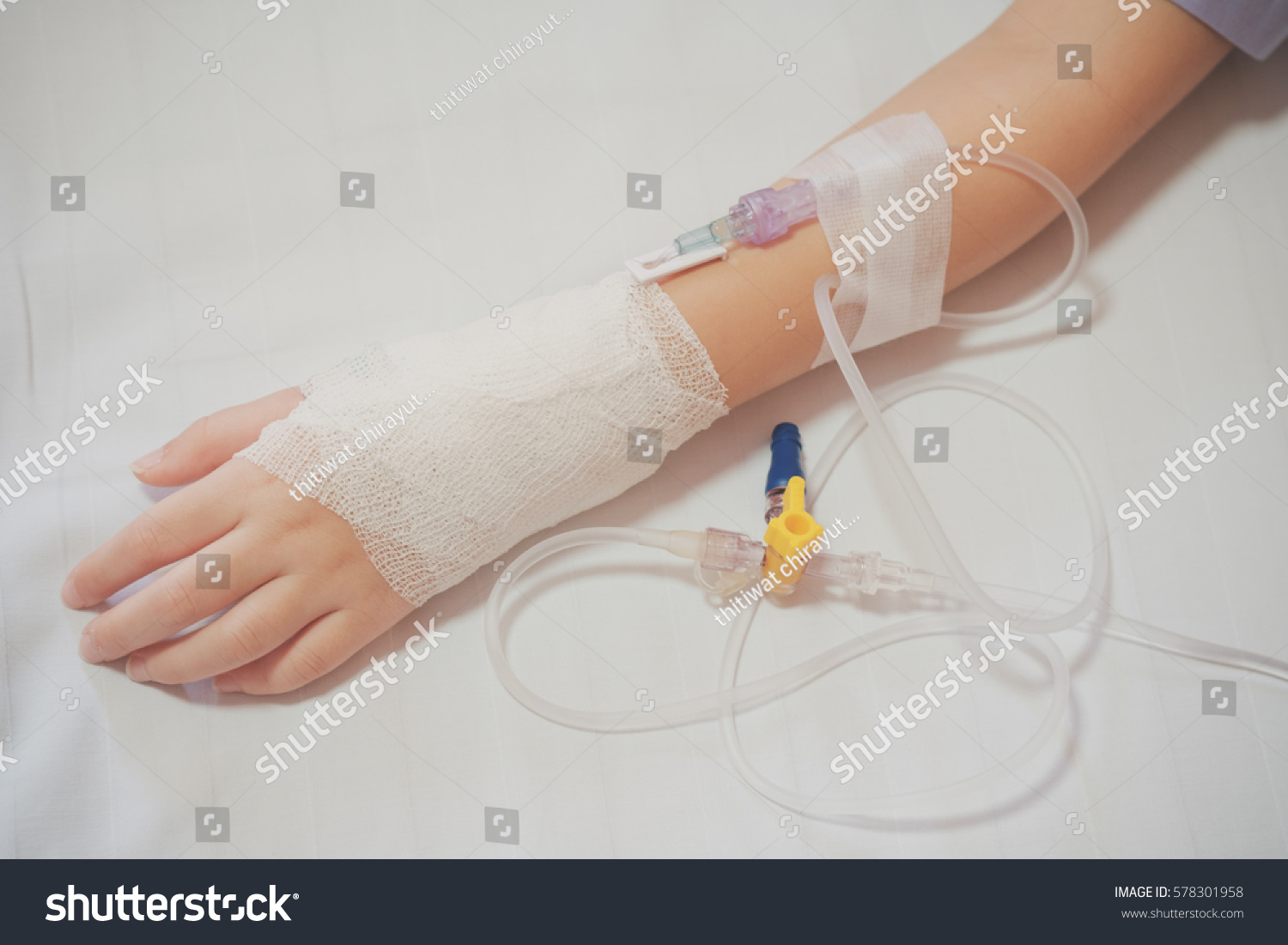 Hand Of Little Girl Patient Admitted To The Hospital With Saline  Intravenous (iv)