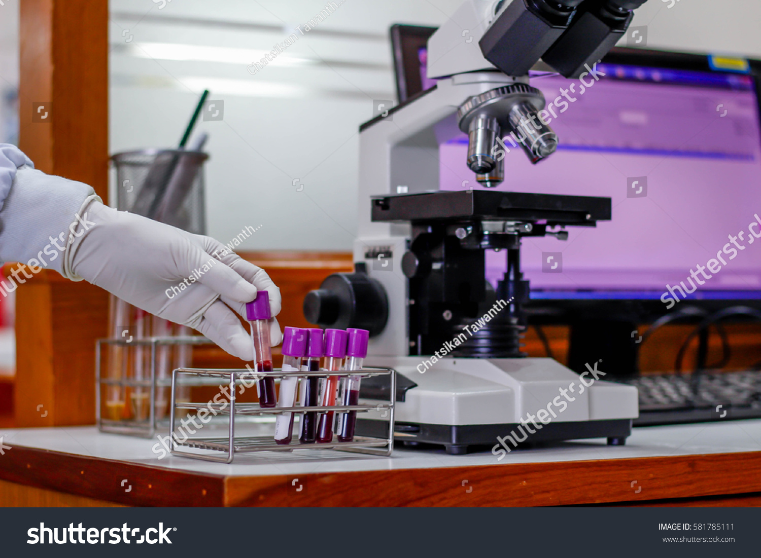 Stock photo the blood in edta tube for test complete blood count testing hematology laboratory