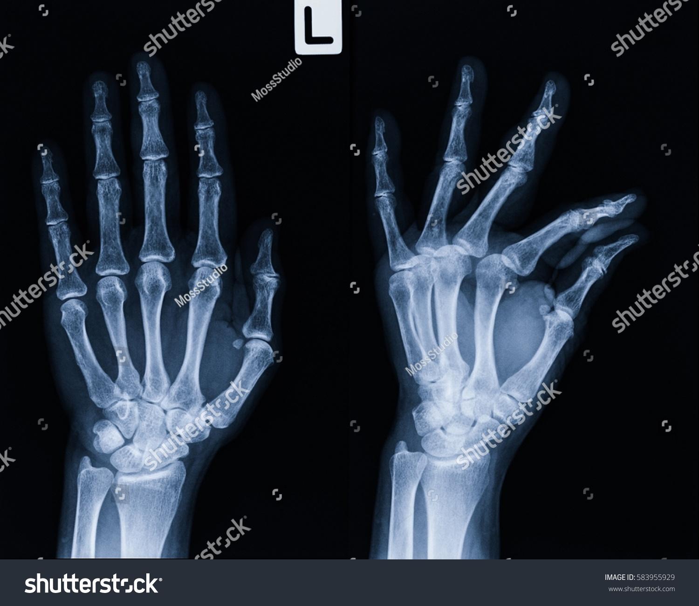 Film Xray Hand AP Oblique View Show Stock Photo (100% Legal ...