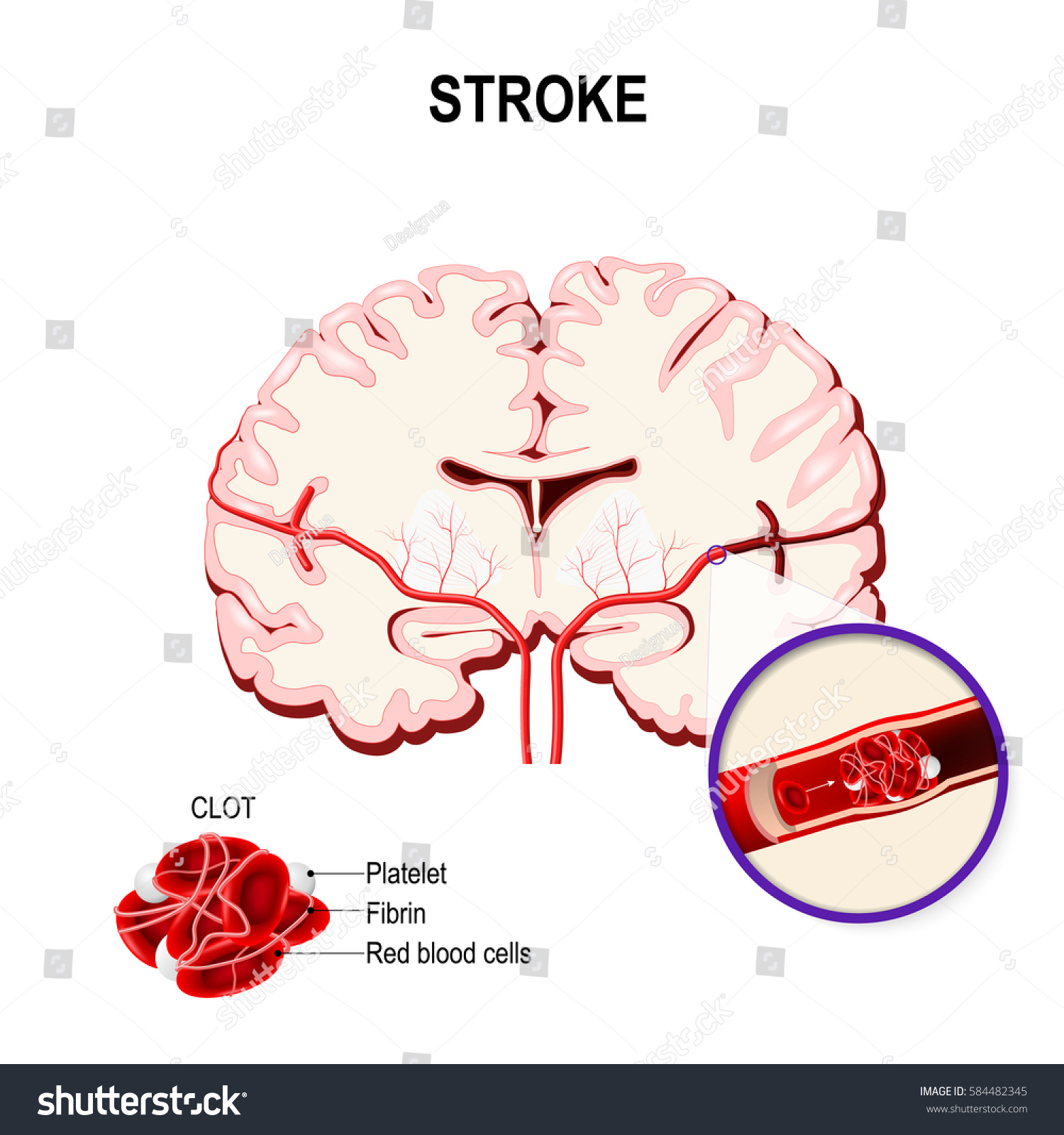 Online Image & Photo Editor  Shutterstock Editor. Eps Signs Of Stroke. Stop And Go Signs. Burmese Zodiac Signs. Scholarship Signs Of Stroke. Sunflower Signs Of Stroke. Sea Turtle Signs Of Stroke. Life Quote Signs Of Stroke. Carnival Signs