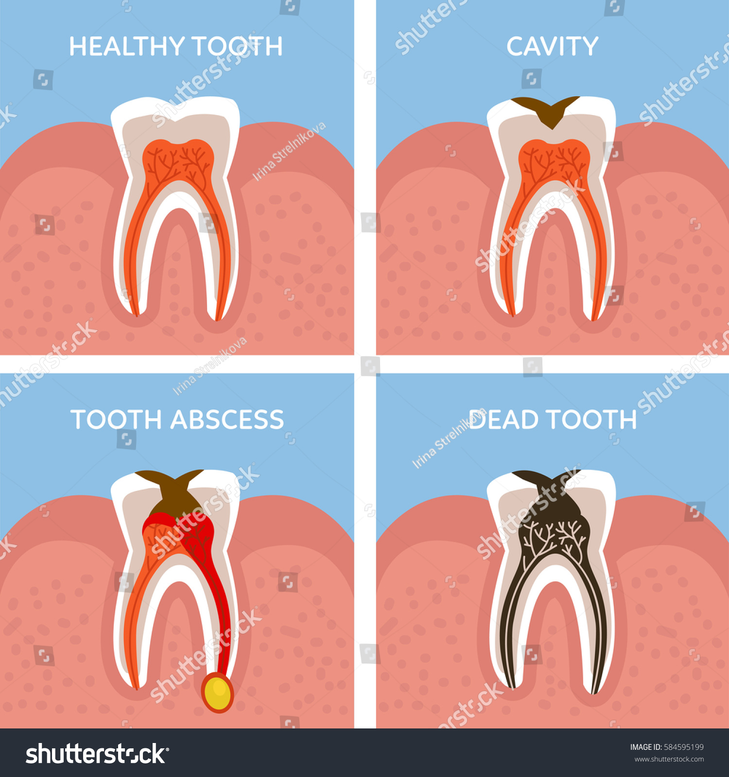 Stages Tooth Decay Dental Anatomy Concept Stock Vektorgrafik