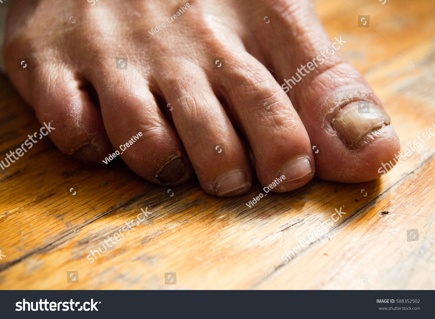 Fungus Infection Dry Crusted Feet Toes Stock Photo (Royalty Free ...