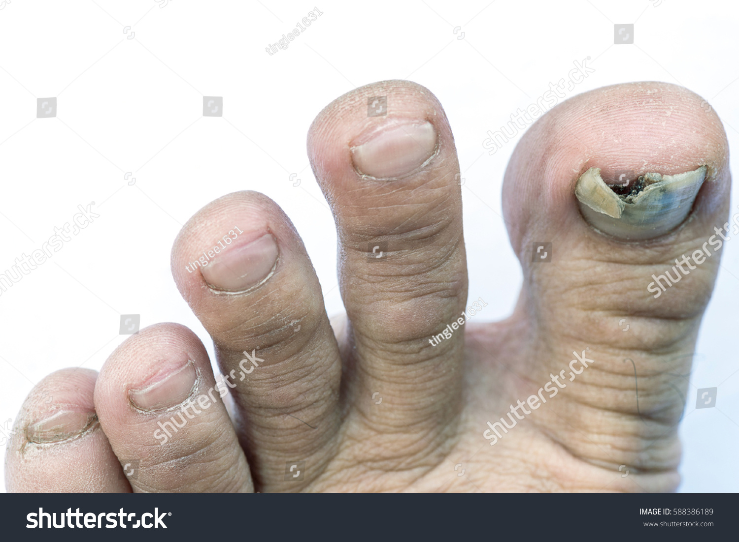 Close Image Mans Left Foot Suffering Stock Photo (Royalty Free ...