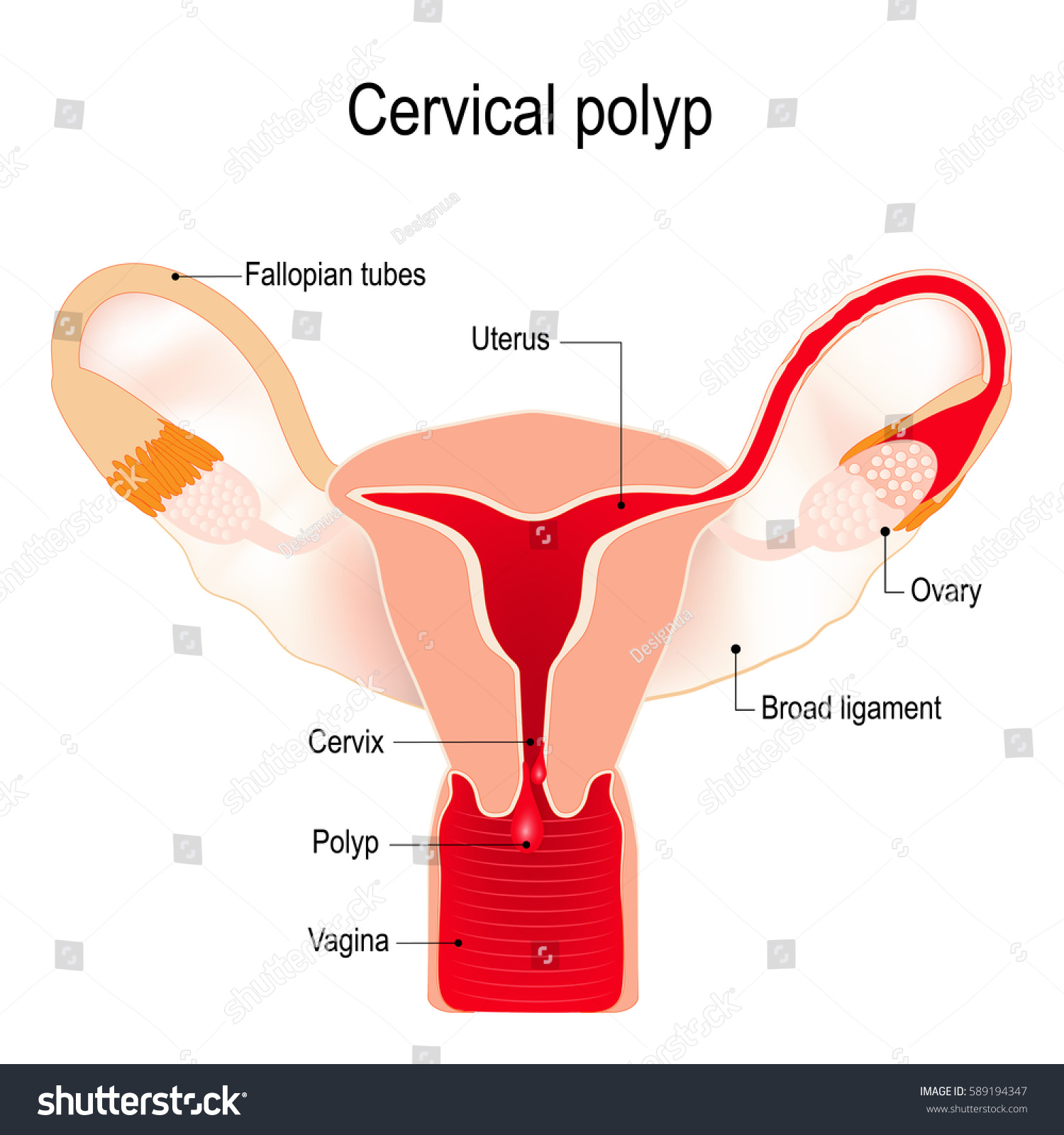 Cervical polyp tumour on surface cervical stock vector 589194347 a cervical polyp is a tumour on the surface of the cervical canal uterus ccuart Image collections